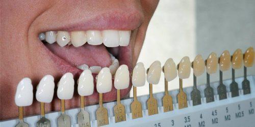 Цвет зубных коронок