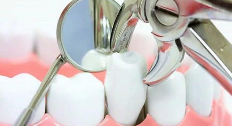 Основной процесс удаления зуба